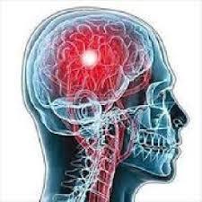 تحقیق مدلهای محاسباتی عصبی از تاثیرات جانبی ناحیه آسیب دیده مغز روی نواحی دورتر از منطقه آسیب دیده